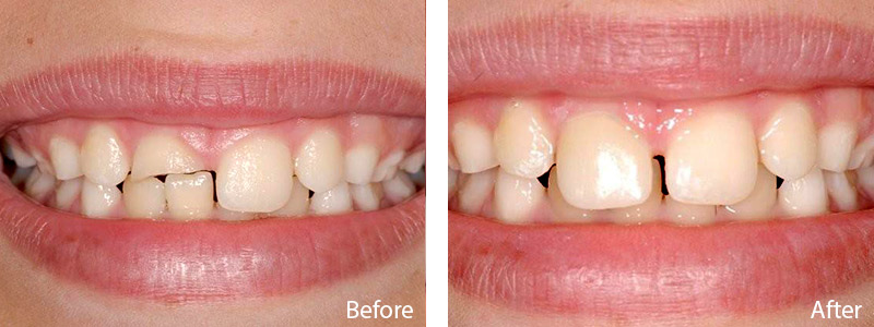 Dr.Schulz fixed his smile using a CEREC restoration in a single visit.
