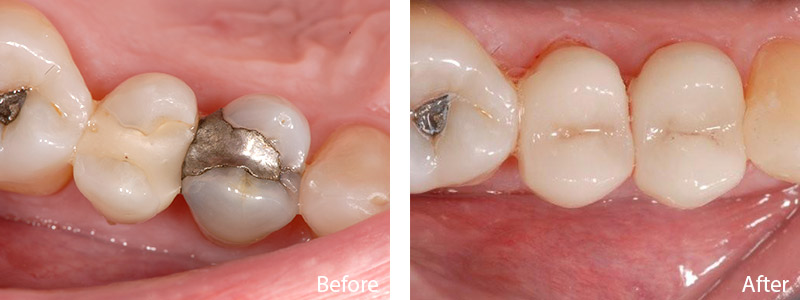 William B. had a metallic silver and composite filling replaced with a tooth-colored CEREC filling.