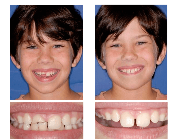 Daniel W. was playing with his little brother and a play bat they were using hit him in the face and fractured his front tooth. Dr. Schulz fixed his smile using a CEREC restoration.