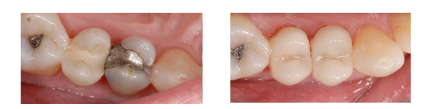 William B. had a metallic silver and composite filling replaced with a tooth-colored CEREC filling