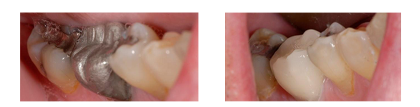 This patient had a large amalgram filling replaced using CEREC technology.