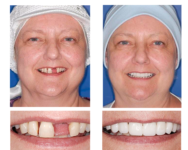 Gwen W. got veneers on her upper teeth, brightening and evening out her smile.