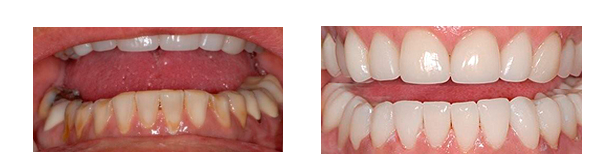 Arlene M. had the lower arch rehabilitation with CEREC.