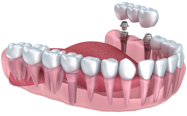 Missing teeth can be replaced with dental implants, bridges or dentures. Dr. Schulz will help you choose the option that's best for the health of your teeth and your budget.
